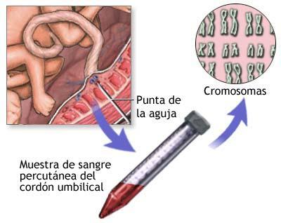 Cordocentesi