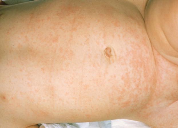 Crema da dermatite atopic per bambini circa un anno